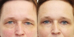 Eyelid Surgery Consultations in Drogheda