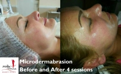 Microdermabrasion only €59