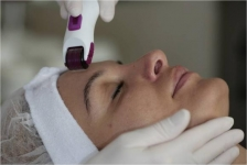 Micro-Needle Therapy only €79