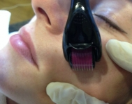 Mesotherapy €99