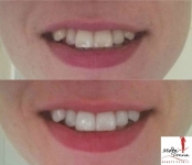 Laser Teeth Whitening only €69