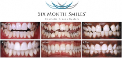 6 Month Smiles Clear Braces FREE CONSULTATION