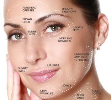 Anti-Wrinkle and Dermal Fillings(botox) FREE CONSULTATION