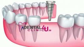 Dantų implantacija, paradantozės gydymas, estetinis plombavimas, protezavimas ir kt. Paslaugos Dubline