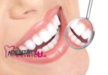 Dantų šaknų kanalų gydymas ir plombavimas Dubline