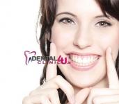 Estetinis plombavimas, atstatant dantų anatominę formą