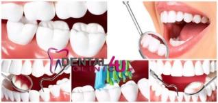 Pagrindinės dantų rovimo priežastys: