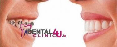 Dantų implantai ir implantavimas Dubline pigiausomis kainomis