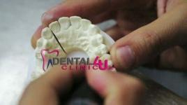 Имплантация зубов, импланты, стоматологическая хирургия Дублинe
