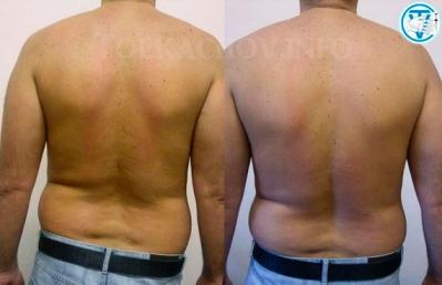 Мануальная терапия, лечебный массаж