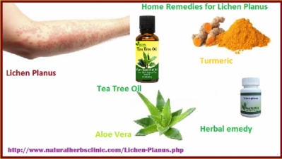 Natural Home Remedies for Lichen Planus