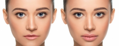 Botox Woolwich |  Health  Aesthetic Clinic