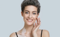 Faster relief from vitiligo|Padanjali Ayurvedic