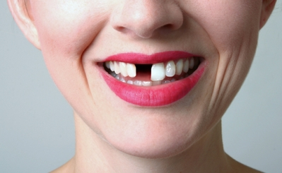 Keep Your Painful Dental Procedures Relaxed and Enjoyable with Nitrous sedation Plainfield IL