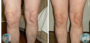 Knee osteoarthritis, gonarthrosis before and after treatment Manual Therapy and Remedial massage Method V.S. Tolkachov Lucan Dublin